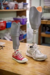 Donate - Below the Knee Prosthesis