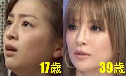 浜崎あゆみ 顔 変わった 鼻