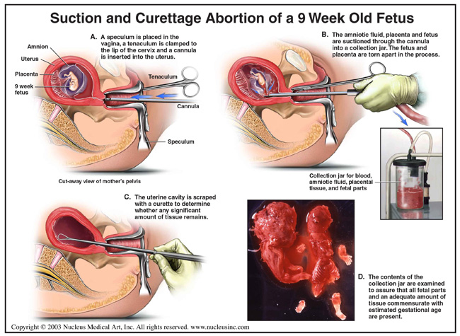 abortionmethods