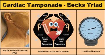 Becks Triad Cardiac tamponade