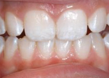 Fluorosis, Top Dentist In Brampton, Dental Health, White Streaks on Teeth, White spots on teeth, Brampton Dental Offices, Family Dentists in Brampton,