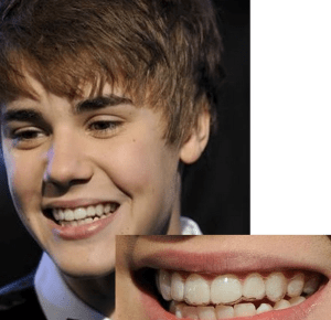 Brampton Dentists, Top Dentist in Brampton, Invisalign Braces, Celebrities with Invisalign Braces, Dentists in Brampton Ontario, Cosmetic Dentistry,