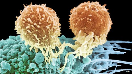 T-cells killing cancer (http://www.bbc.com/news/health-20898931)