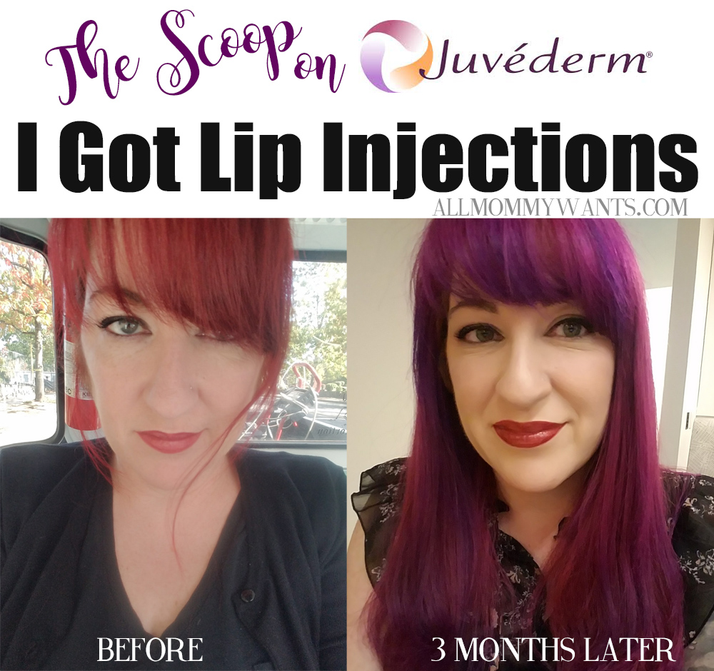 I Got Juvederm Lip Fillers - Here's The Scoop (Video) | Life