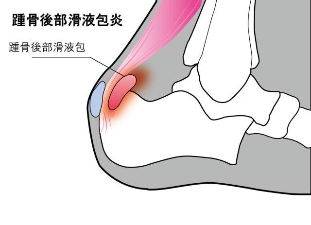 【かかとが痛い】踵骨後部滑液包炎が発症する場所と対処法