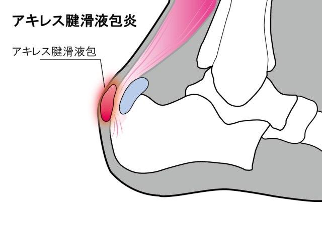 【かかとが痛い】アキレス腱滑液包炎が発症する場所と対処法