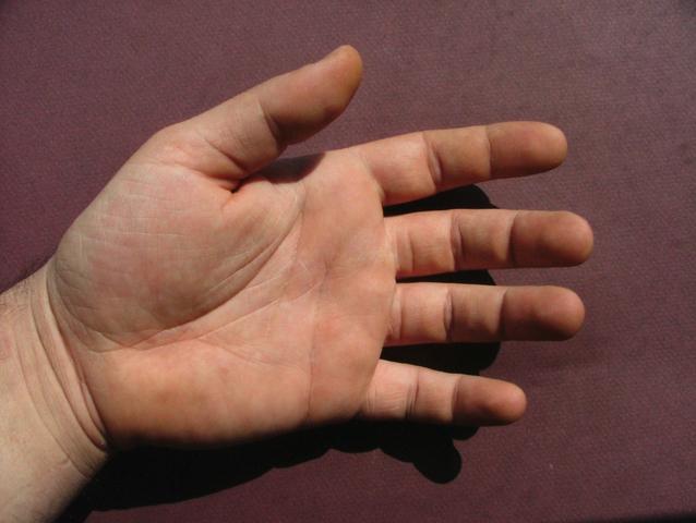 主婦湿疹の治し方!ひび割れの痛みとかゆみを抑える5ステップ