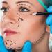 menganai hal-hal yang perlu kamu tahu sebelum menjalani operasi plastik.