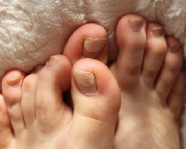 Whiten Yellow Nails Scrub During