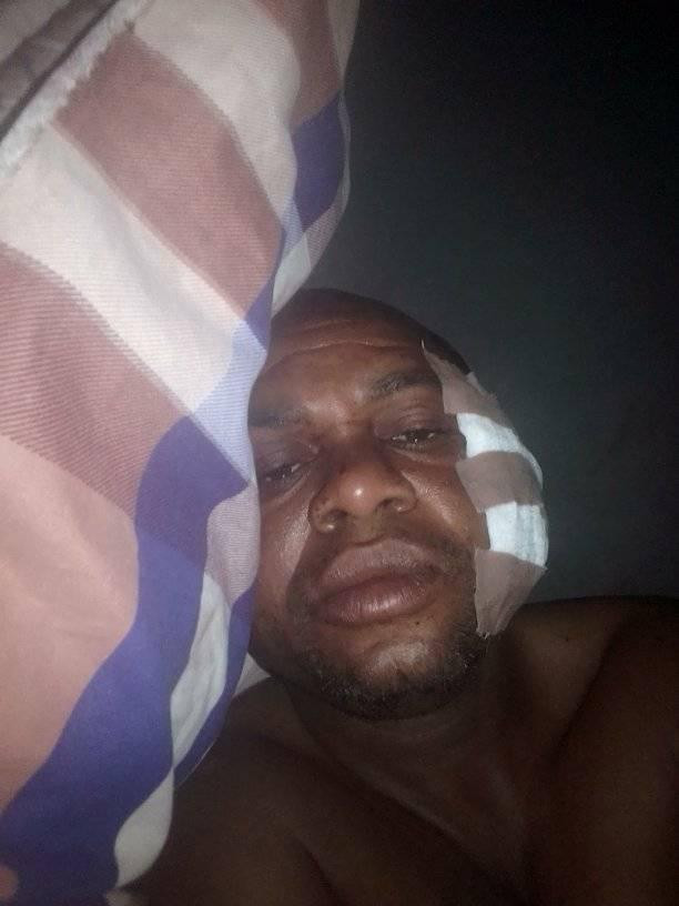 Man narrates how he narrowly escaped death in Benue communal clash