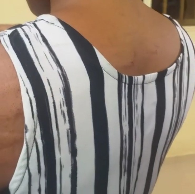 Unizik student bleeds after lecturer allegedly beat her for not wearing ankara (video)