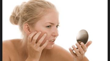 Macchie solari rimedi naturali: come eliminarle da viso e corpo
