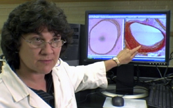 Dr. Carol Shively has studied the correlation between stress and hierarchy in macaque monkeys. On the left is a cross section from the artery of a dominant animal. On the right is a cross section from the artery of a subordinate monkey that lives with the constant stress of low social standing. (Caption: loe.org, Photo: Unnatural Causes)