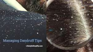 Managing Dandruff