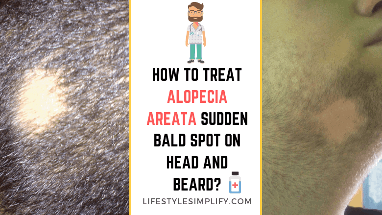 Treat Alopecia Areata Sudden Bald Spot on Head and Beard