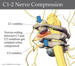 root cause of cervicogenic headaches