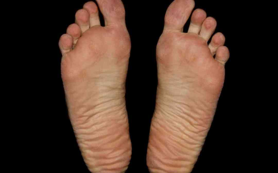 Tips and Facts About How to Heal Plantar Fasciitis and Where It Comes From