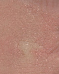 Dry skin on knuckles with a scaly texture