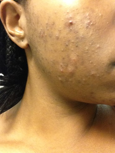 These pictures were taken after I started using products from the dermatologist. My acne had been worse.