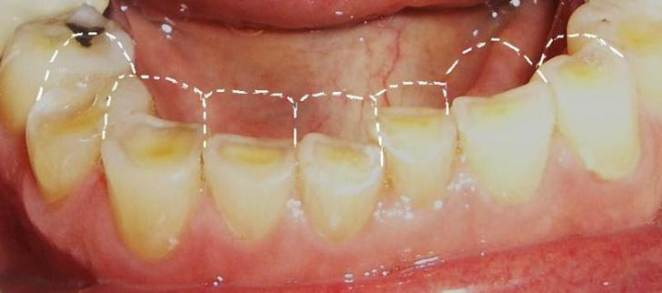 Lifexpe LXP Life experiencing teeth ache tooth erosion