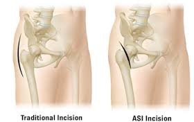 The anterior hip replacement is a newer, less invasive approach.