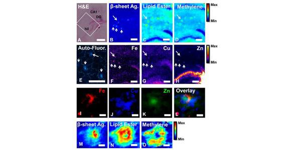 Combined imaging approach characterises plaques associated with Alzheimer's disease