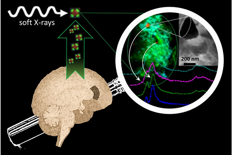 Metallic drivers of Alzheimer's disease