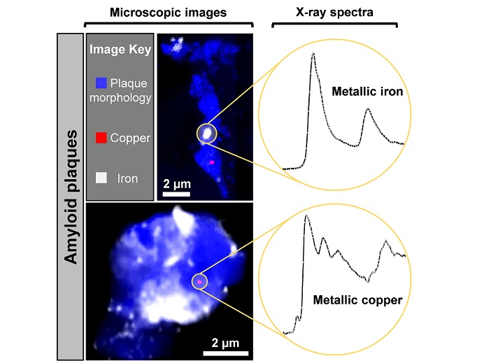 Diamond helps discover microscopic metallic particles in the brain