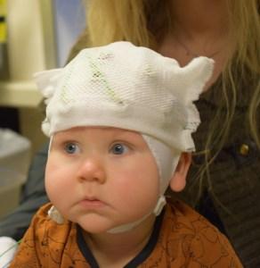 EEG baby onderzoek
