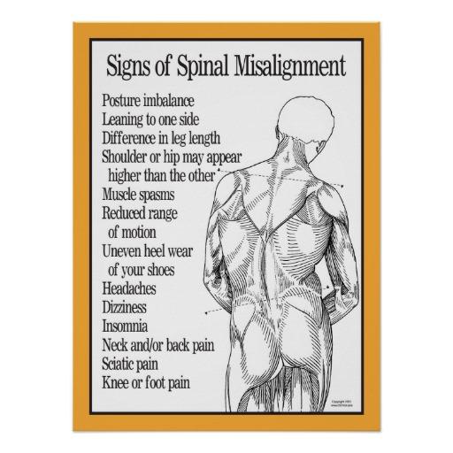 misaligned spine