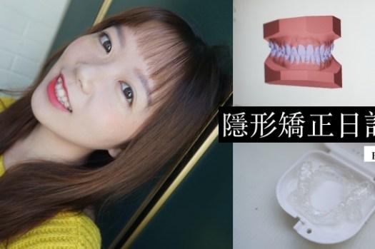 SOV隱形矯正日記|MIT隱形牙套價格/諮詢、配戴心得/注意事項總整理