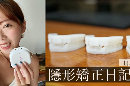 SOV隱形矯正日記|矯正期間根管治療/臨時假牙經驗分享
