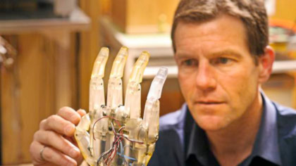 unb-research-contributes-to-worlds-first-thought-controlled-prosthetic-leg