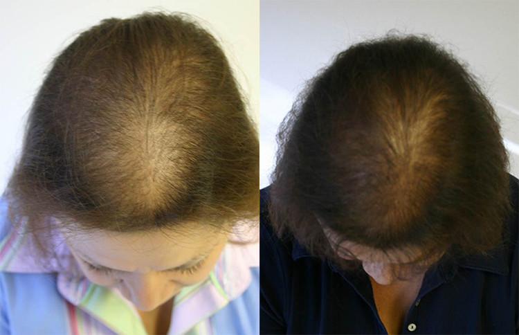 Female Hair Loss Patient 2 Limmer Hair Transplant Center