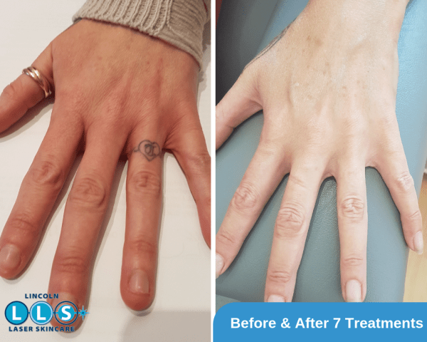 Example of Tattoo Removal on the Finger with 1 treatment