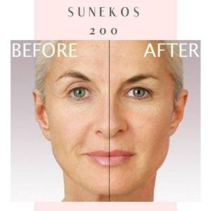 Sunekos Treatment