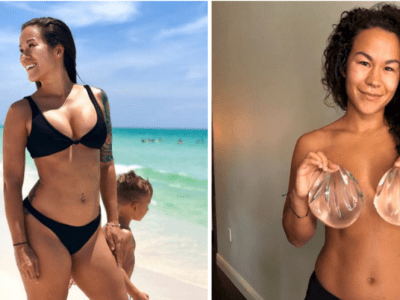 I Got My Breast Implants Removed and Feel Better Than I Have In Years