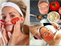 5 Tomato Beauty Treatments for Acne And More