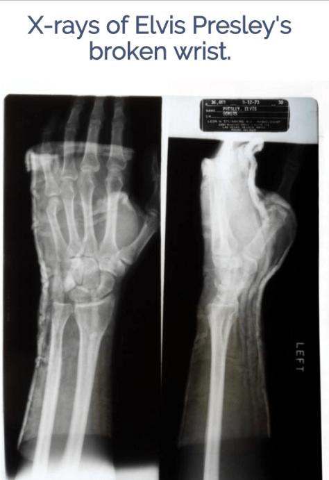 Elvis Presley s left wrist X Rays