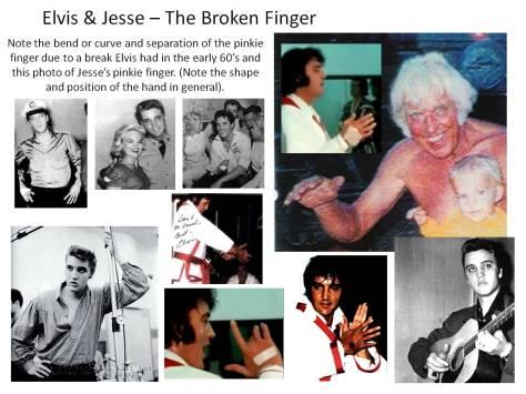 Elvis-Jesse-TheBroken-Finger