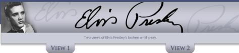 Elvis Presley s wrist X Ray Two Views header