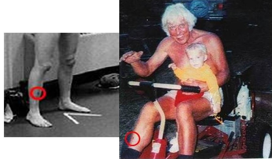 Elvis and Jesse matching scar on right leg from Lucilia smaller
