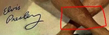 Elvis move still showing scar on leg.jpg