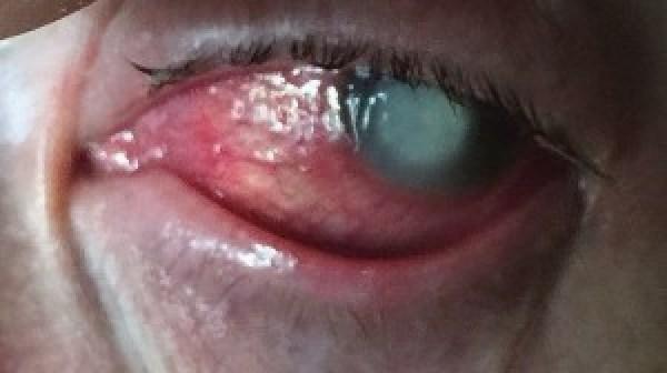 φακούς επαφής 3