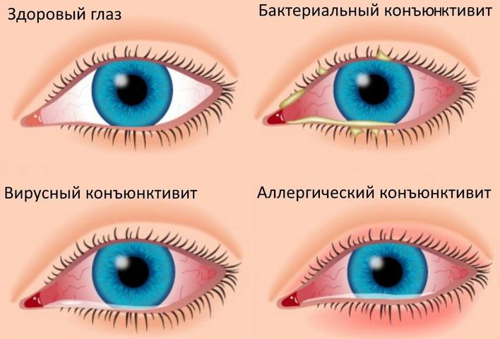 Один глаз красный другой нормальный: причины воспаления