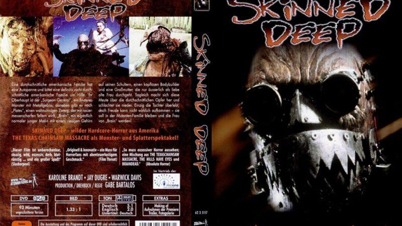 Scannati vivi – Skinned deep (G. Bartalos, 2003)