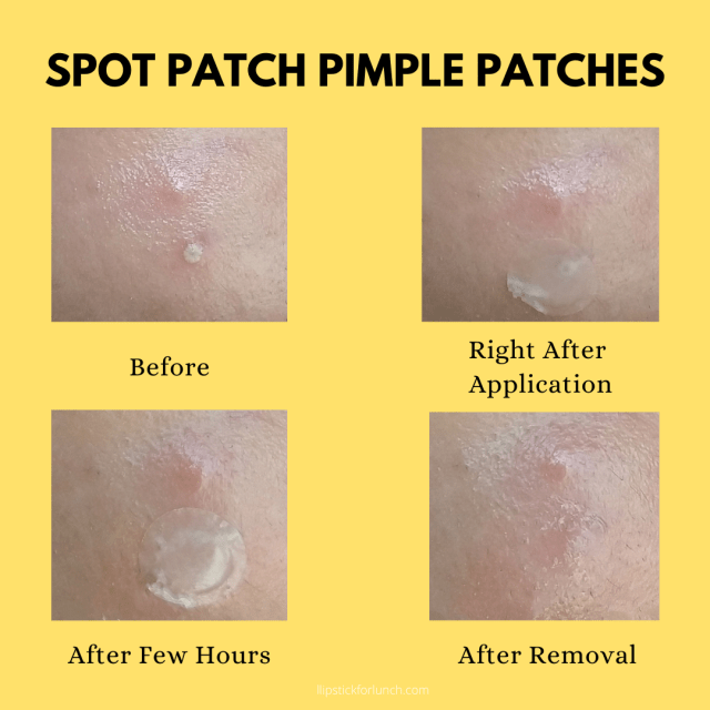 Spot Patch Pimple Patches | Review