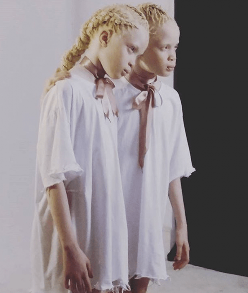 meet the stunning albino twins from brazil who are killing the international modeling scene