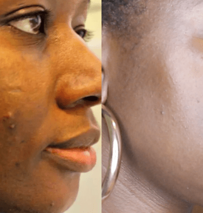 Here's How I Got Rid Of My Dark Spots Easily and Relatively Quickly