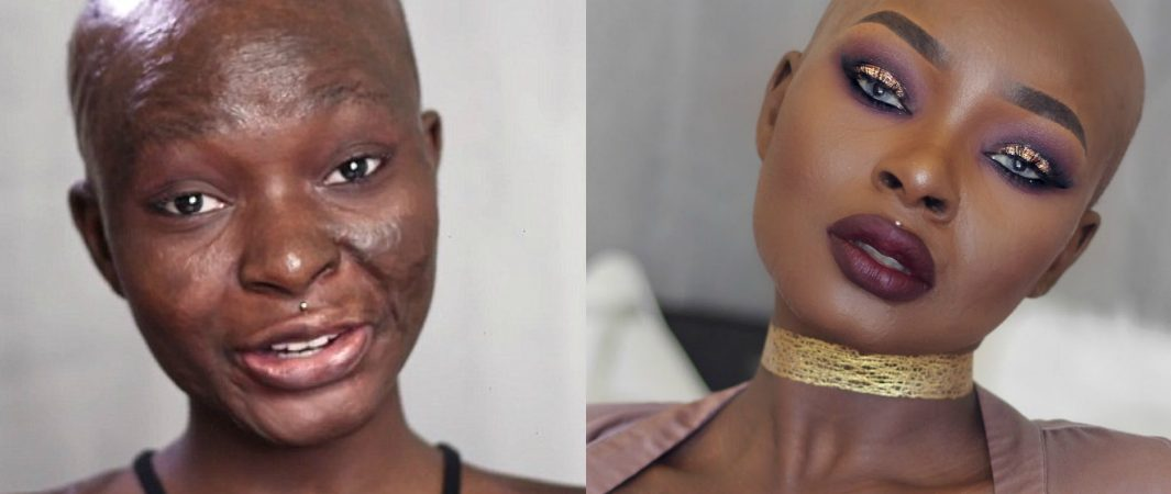 From Burn Survivor To Youtube Stardom. Meet The Ever